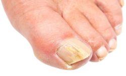 Чудодейственный отвар от ногтевого грибка: результат виден уже через 4 процедуры.